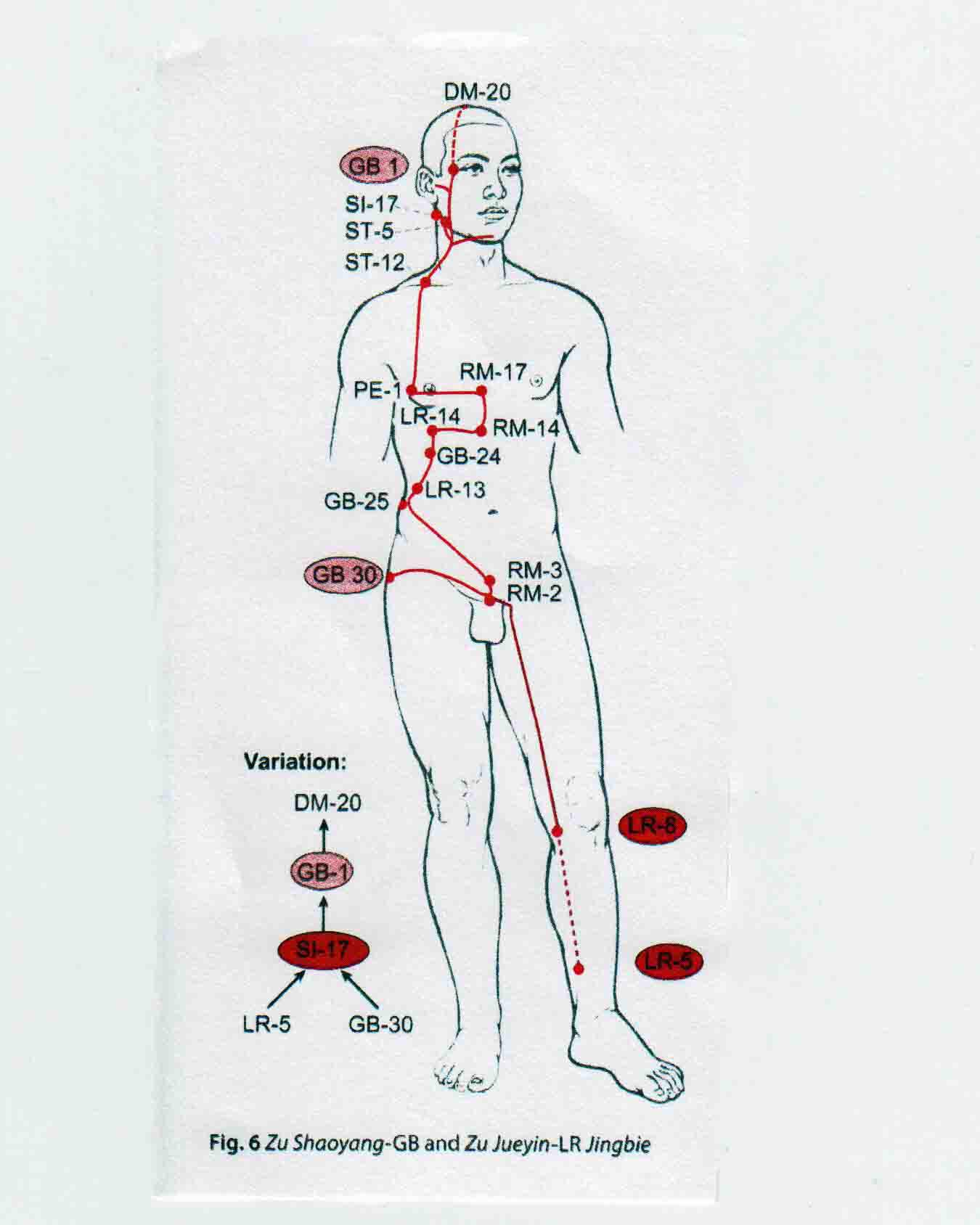 The 3-Level Acupuncture Balance: Part 4 - More on the