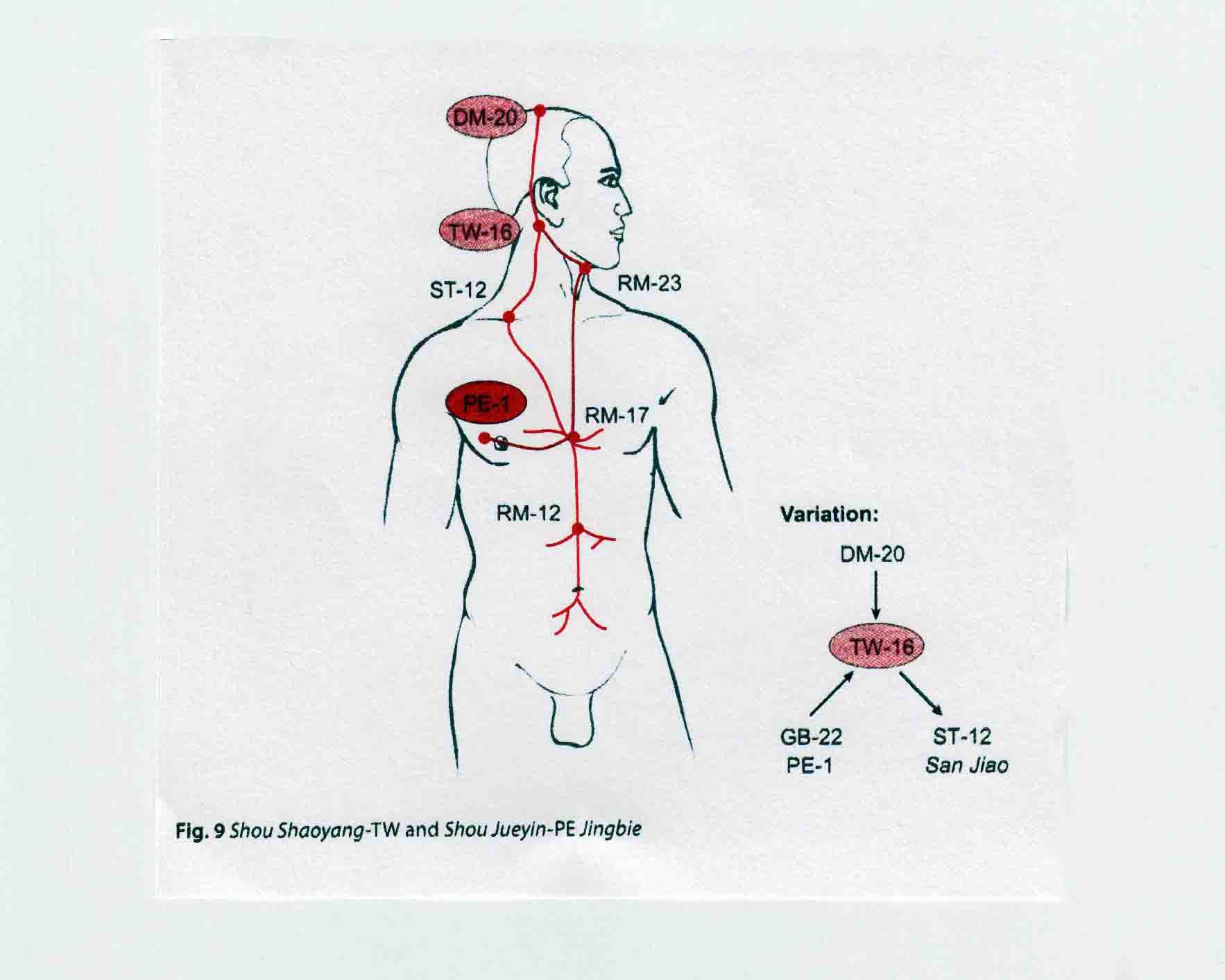 The 3-Level Acupuncture Balance: Part 4 - More on the Divergent